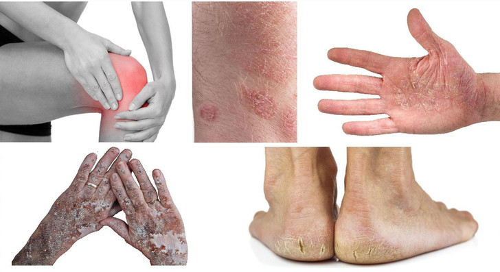 Organic Scaly-Skin Recovery Cream