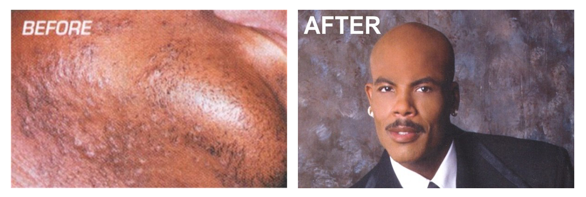 before-after-edit.png