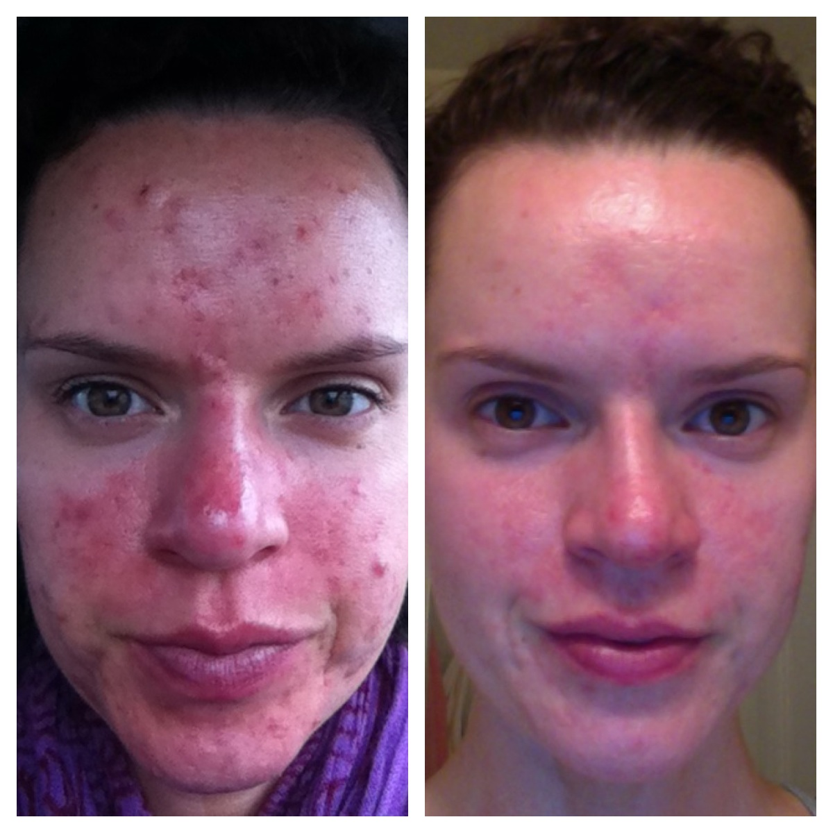 skin-care-before-and-after-6-months.jpg