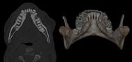 Mandibular Tori, Causes and Treatment
