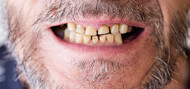 Tooth Abrasion: Causes and Treatment
