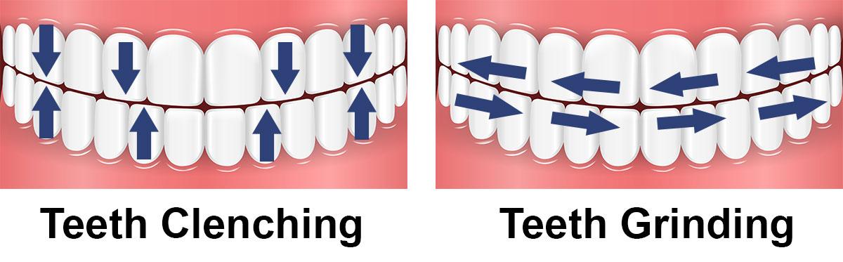 teeth clenching vs teeth grinding