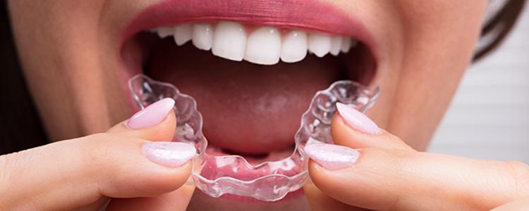 treatment-of-teeth-clenching-20200522.jpg