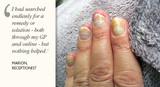 Case Study: 'Miracle Worker' for Nails