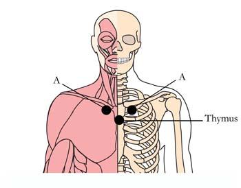 os-14-hay-fever-allergy-cell-points1.jpg