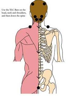 os-15-headache-migrane-tlc-points1.jpg