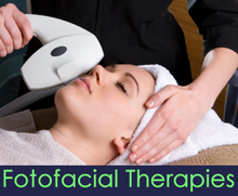 Face & Neck Lumecca® PhotoFacial (IPL)