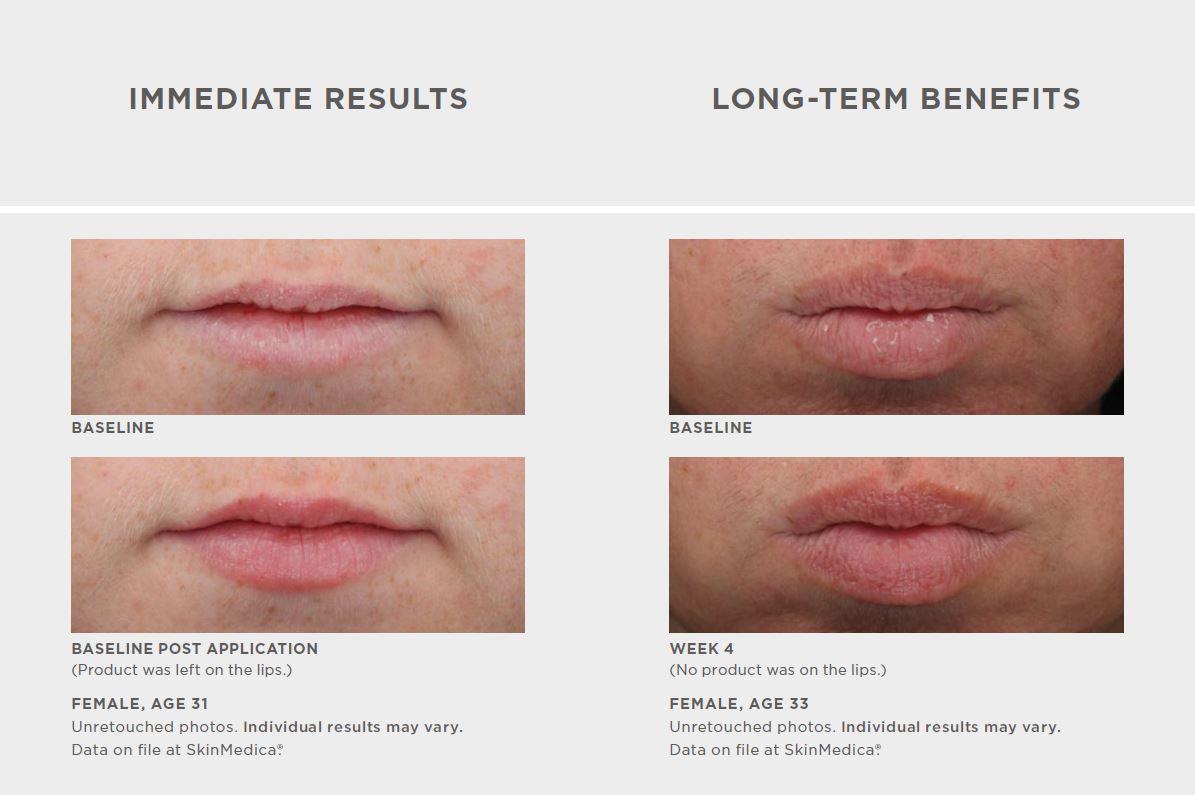 ha5-lip.jpg
