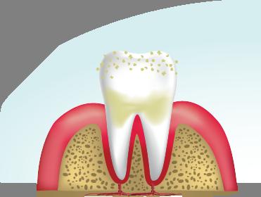 Cleaning teeth1