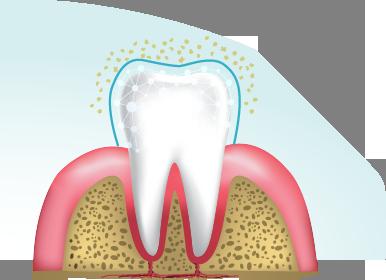Cleaning teeth2