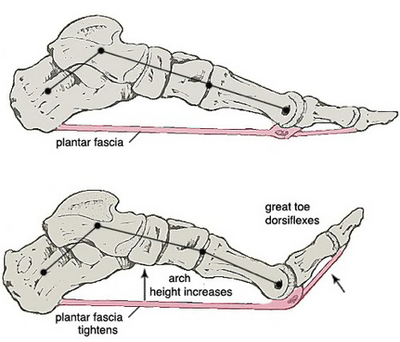 What is the Main Cause of Plantar Fasciitis