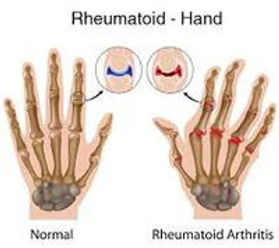 Physical Therapy Modalities for Rheumatoid Arthritis