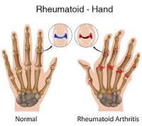rheumatoid arthritis ahol jobb kezelni