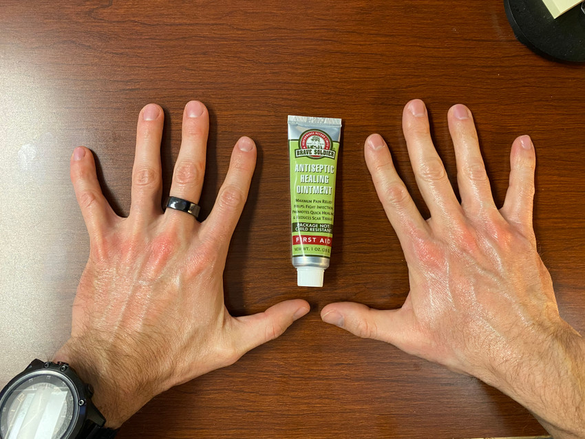 Remedy for Dry/Damaged Hands