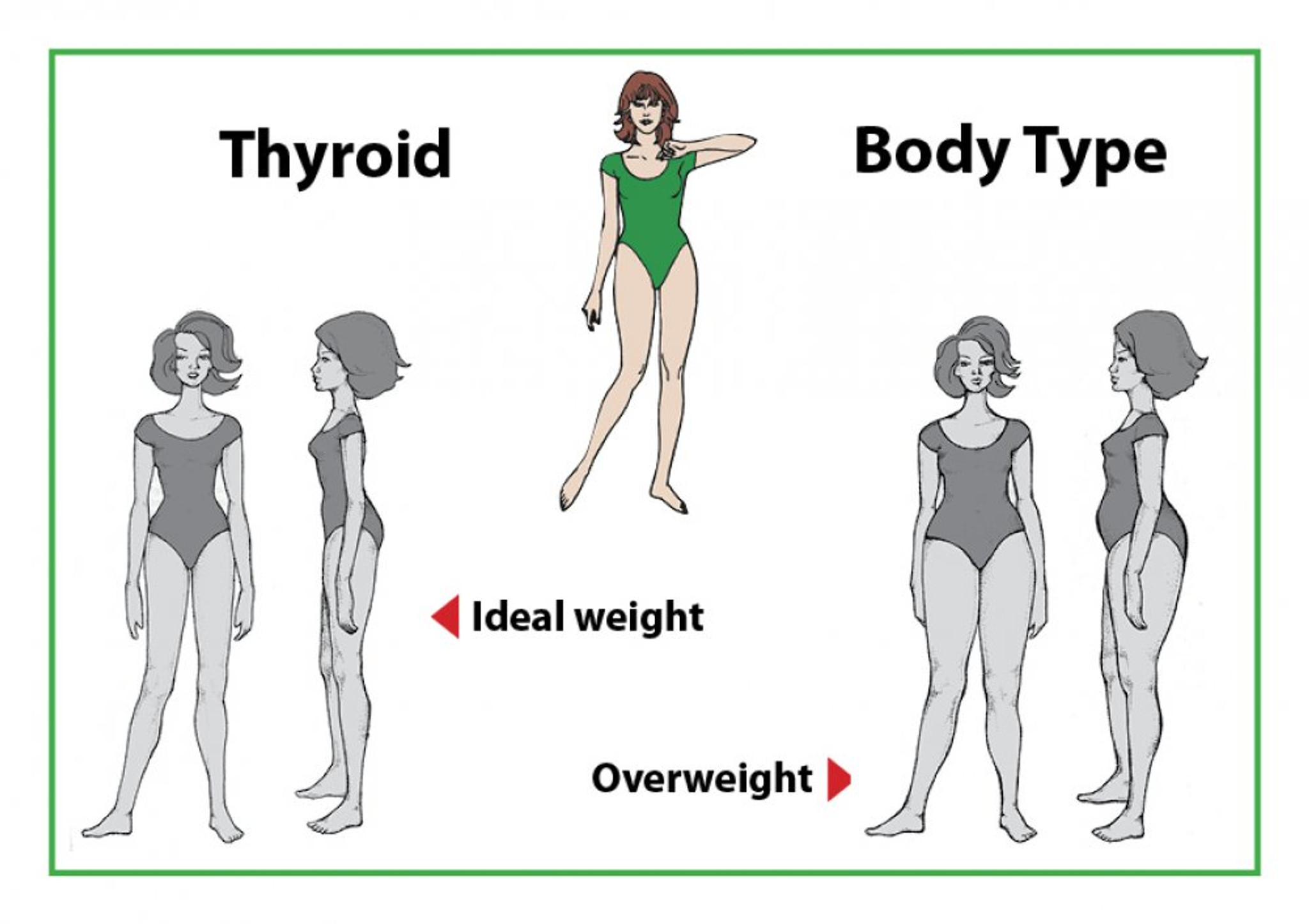 Thyroid Body Type Information