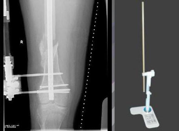 MagiLongueTM Orthopaedic Rule with 3D Manipulator