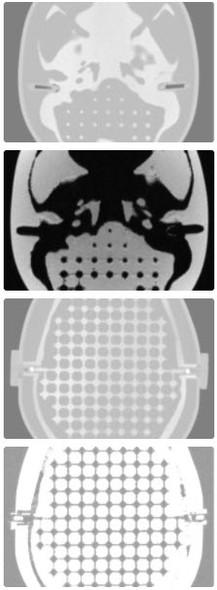 MR Distortion & Image Fusion Head Phantom
