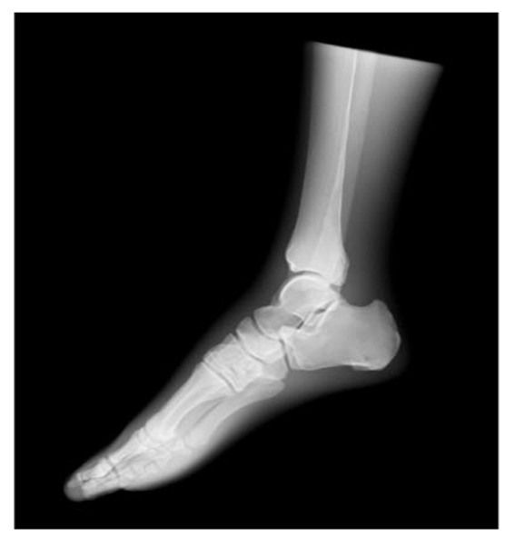 Sectional X-Ray Phantom With Artificial Bones - Left Foot, Opaque * Transparent