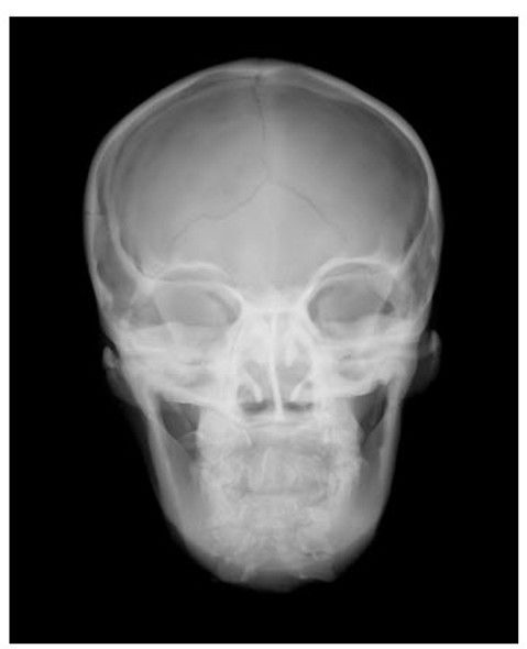 Sectional X-Ray Phantom with Artificial Bones - Head phantom - Transparent & Opaque