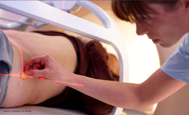 Laser System for Patient Positioning at MRI
