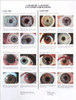 Laminated Eye Chart