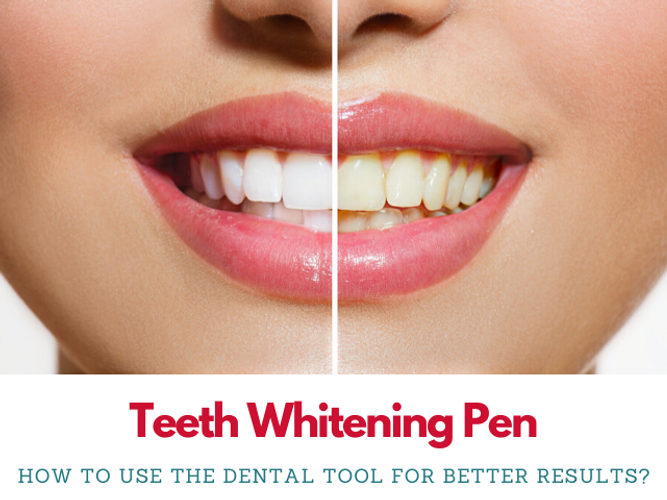 A Complete Guide To Using Teeth Whitening Pens