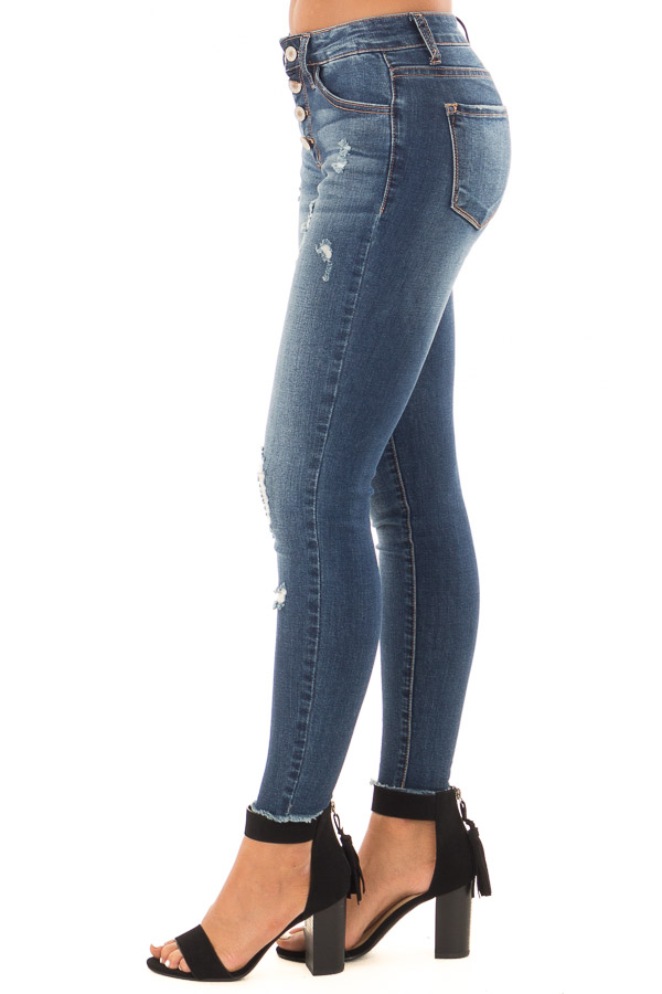 Dark Wash Ankle Skinny Jean with Distressed Details side view