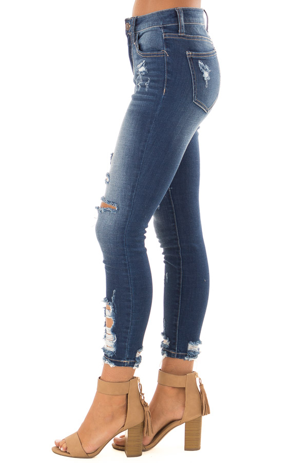 Dark Wash Denim Skinny Jeans with Distressed Details side view