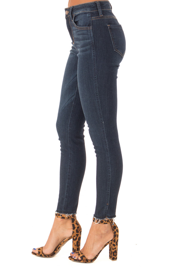 Dark Wash Skinny Jeans with Side Slits and Distressed Hem side view