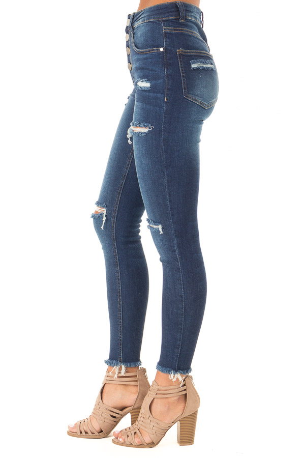 Dark Wash High Waisted Skinny Jeans with Distressed Details side view