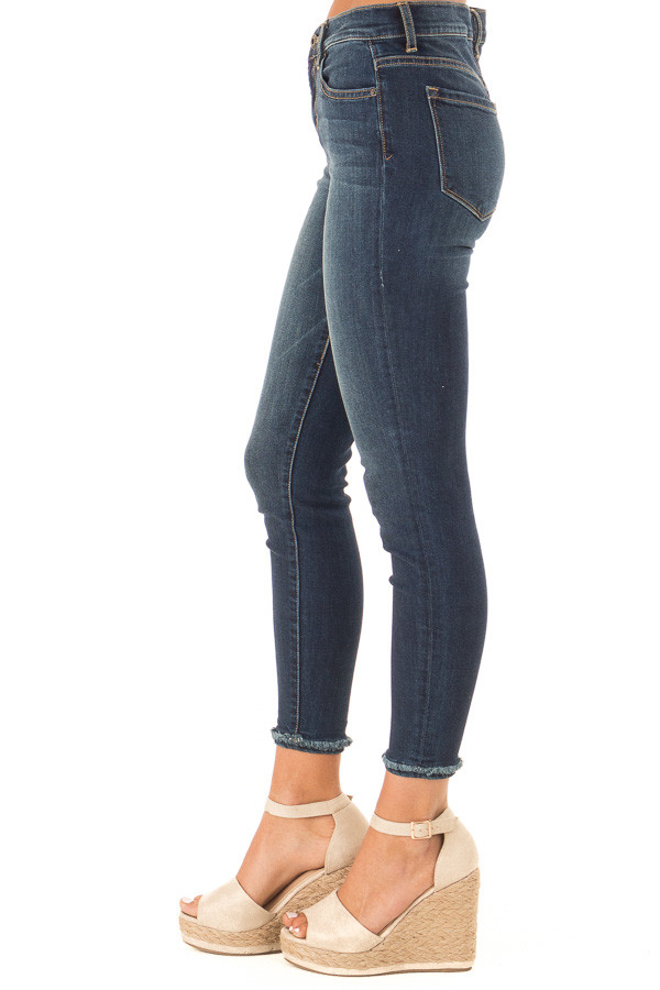 Dark Denim Mid Rise Ankle Skinny Jeans with Distressed Hems side view