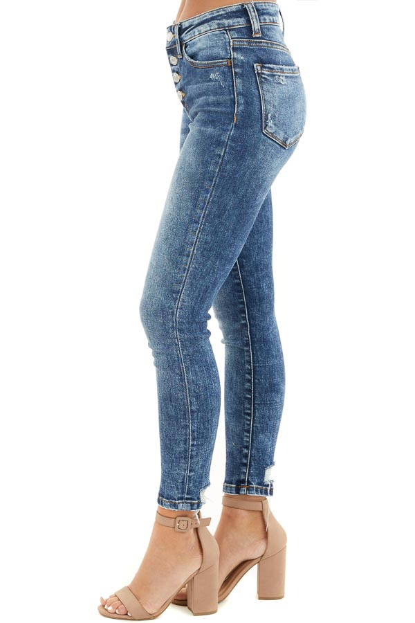 Medium Wash Button Up High Waisted Distressed Skinny Jeans side view