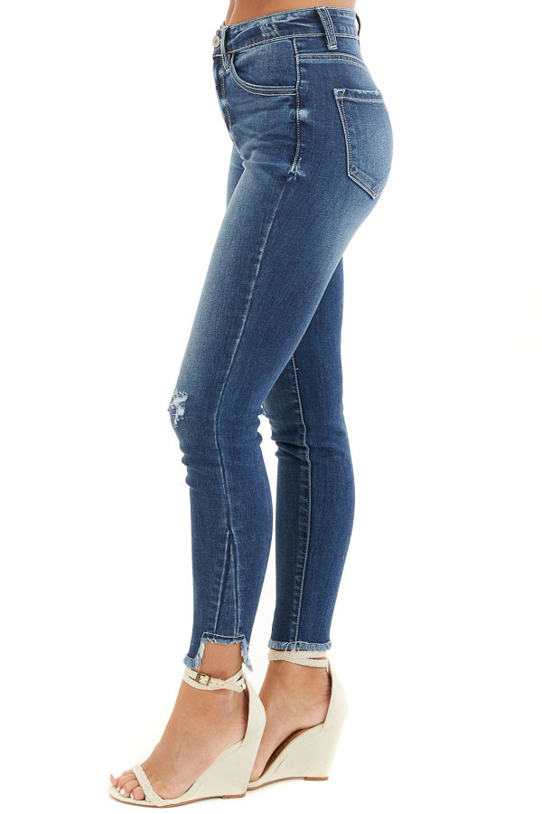 Dark Wash Ankle Length Skinny Jeans with Distressed Details side view