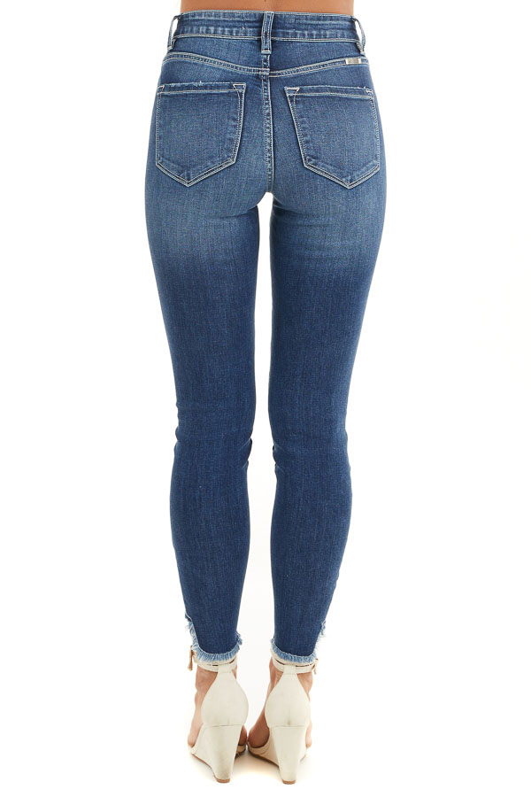 Dark Wash Ankle Length Skinny Jeans with Distressed Details back view