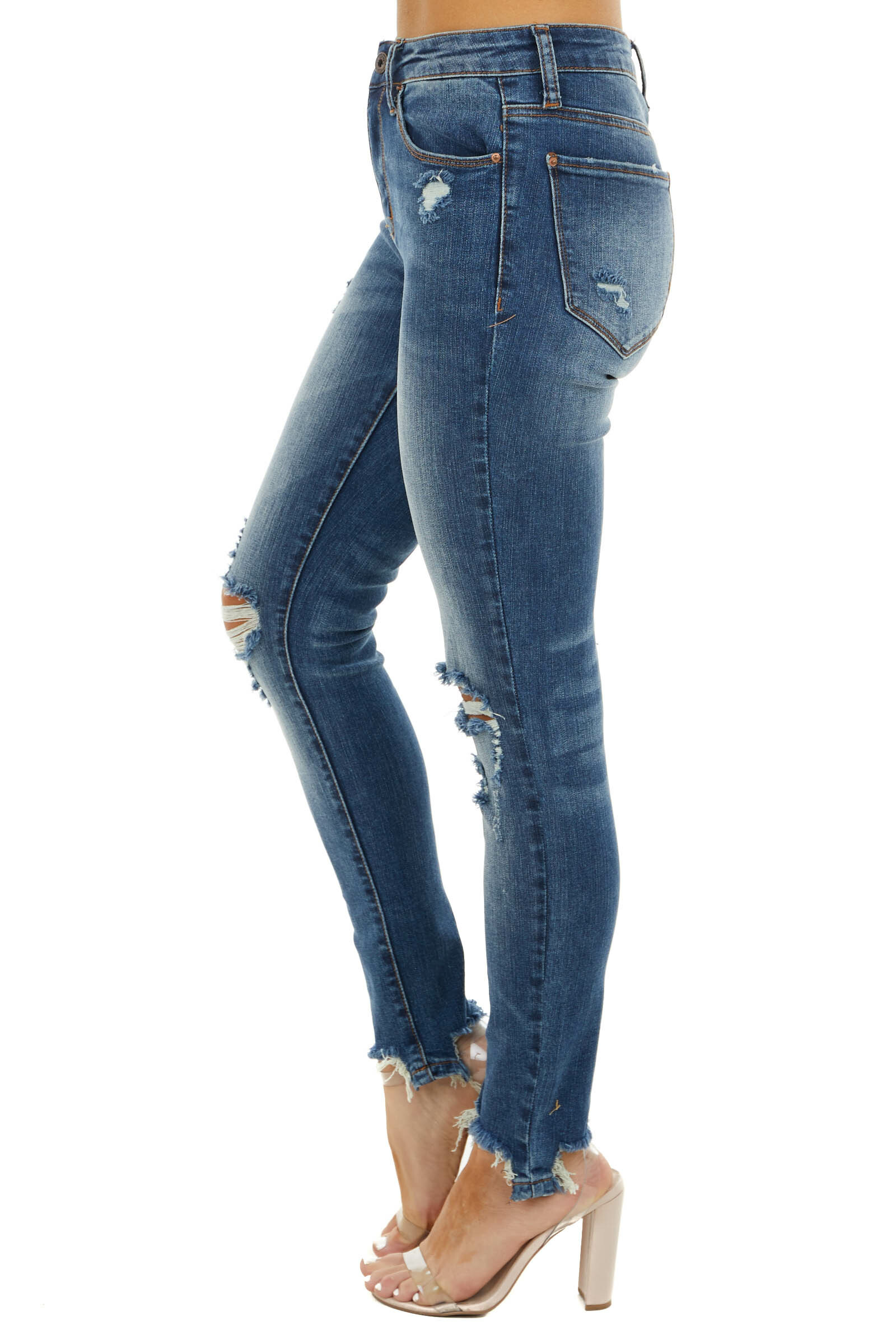 Dark Wash Mid Rise Skinny Jeans with Distressed Details
