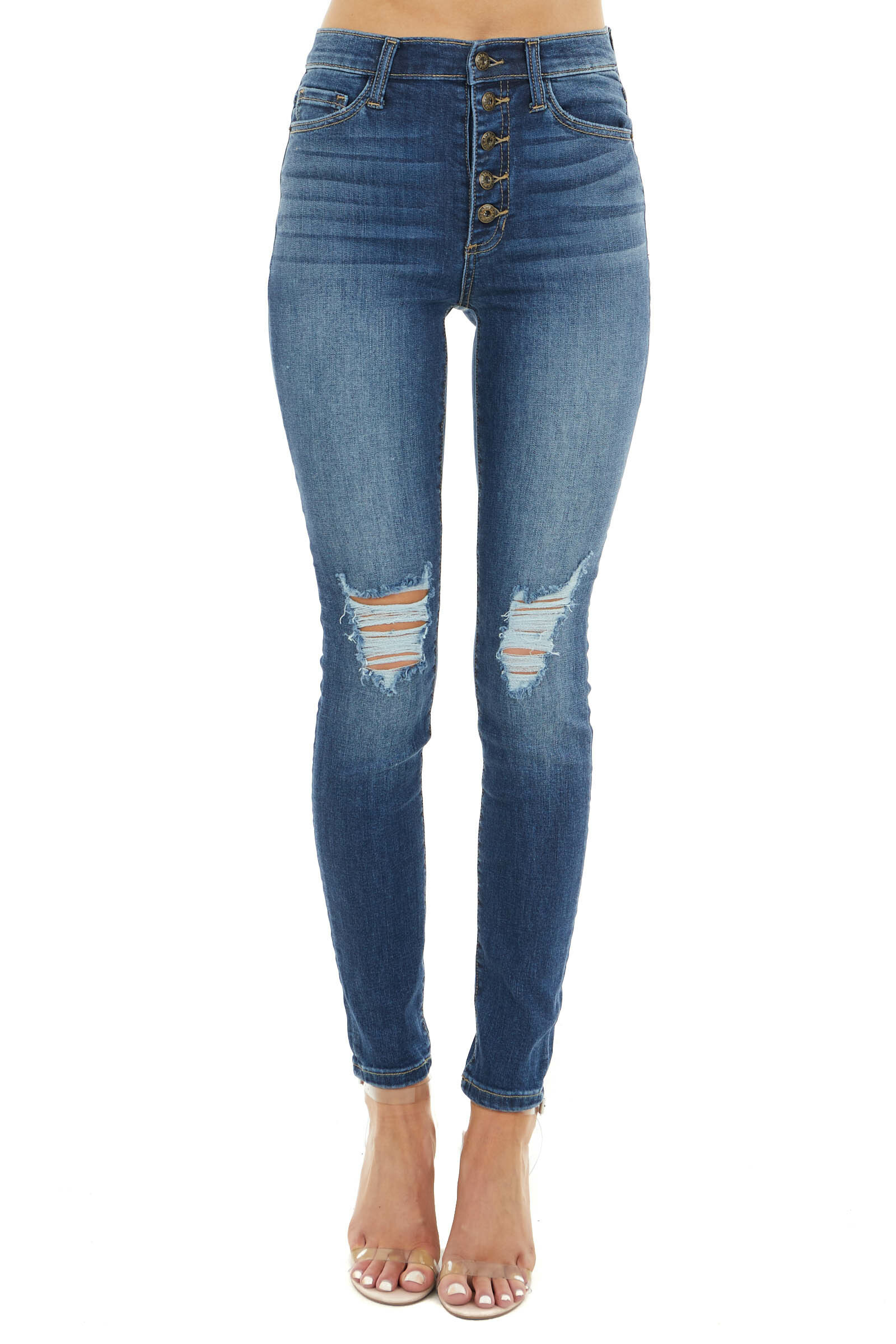 Medium Dark Wash Distressed High Rise Button Up Skinny Jeans