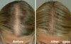 Laser Cap 300FLEX - #1 Rated Laser Hair Growth Product