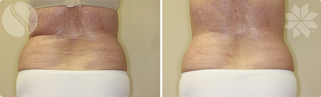 After Coolsculpting for Flank Area Single Treatment 3 Months post Courtesy of Silhouette Cosmetic Laser Clinic