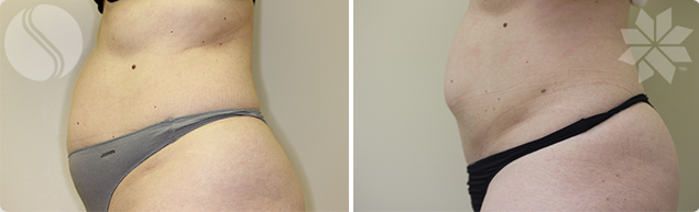 After Coolsculpting for Abdomen Single Treatment 3 Month Post Courtesy of Silhouette Cosmetic Laser Clinic