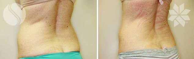 After Coolsculpting for Back Flank Area Single Treatment 3 Months post Courtesy of Silhouette Cosmetic Laser Clinic​