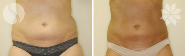 After Coolsculpting for Lower Abdomen Area Single Treatment 3 Months post Courtesy of Silhouette Cosmetic Laser Clinic