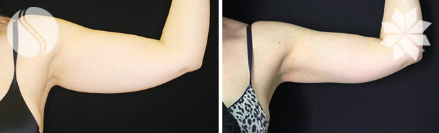 After 1 Coolsculpting<sup>®</sup> treatment to Arms - 3 Months post Courtesy of Silhouette Cosmetic Laser Clinic.