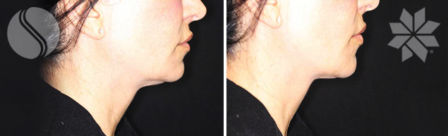 After 2 Coolsculpting<sup>®</sup> treatments to chin with 50% over lap in the middle- 3 months post Courtesy of Silhouette Cosmetic Laser Clinic.