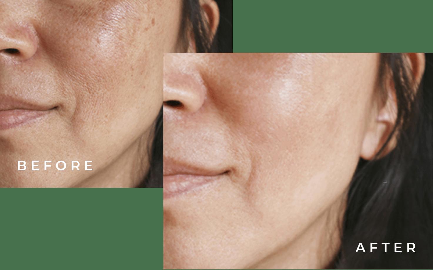 Skin Laser Clinic Waterloo | Silhouette Laser Clinics