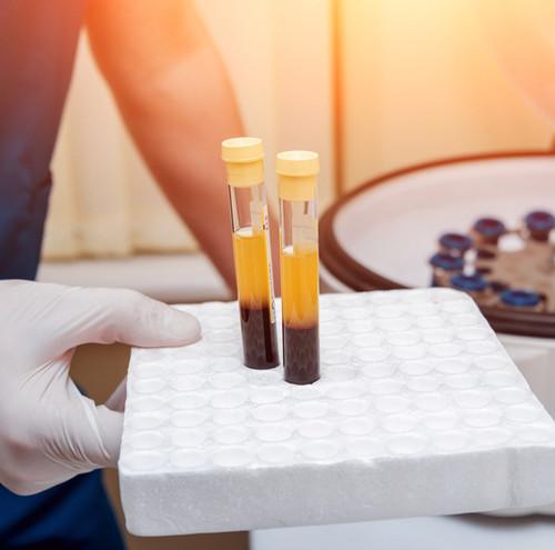 Yellow Fever Virus Vaccine Serum: 2-Week (IgM) Bleed