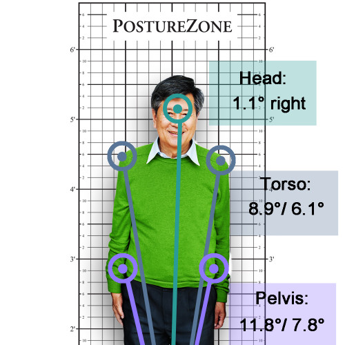 Why You Must Start Taking Posture Pictures