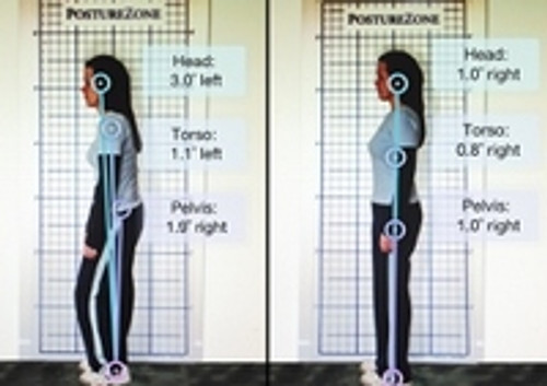 ​Posture Pictures assessment as a first step to help clients improve posture