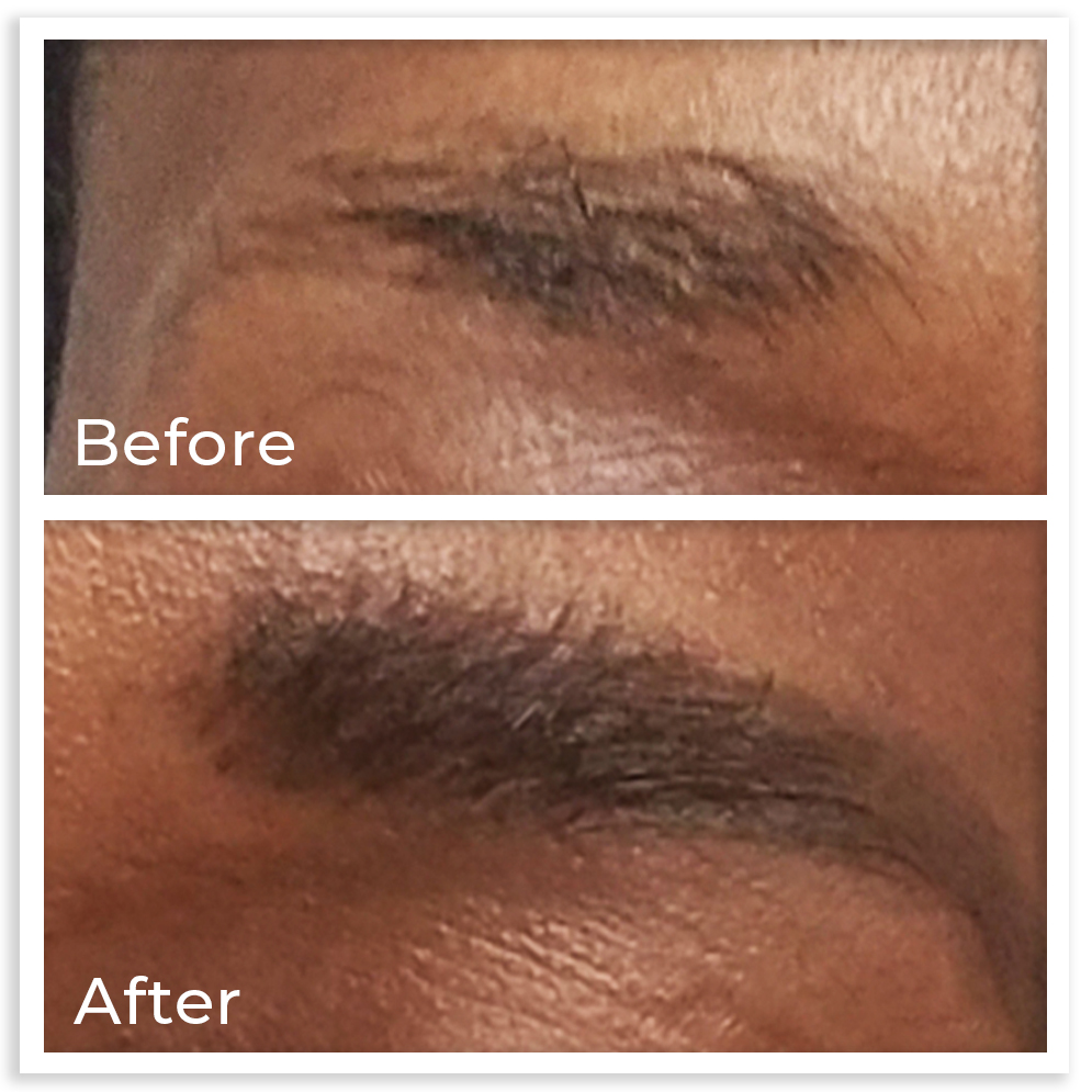10.2020-brow-gain-before-and-after-copy.jpg