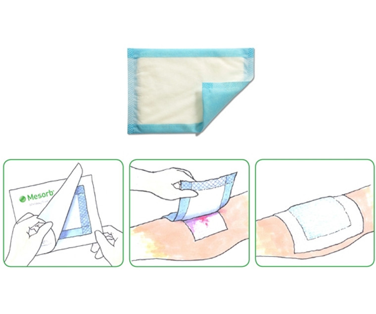 Molnlycke Mesorb Absorbent Dressing (Pack of 10)