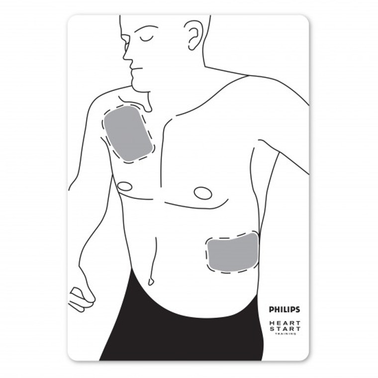 Philips Flat Man Adult Pad Placement Guide